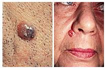 Le Carcinome Basocelleulaire - The Skin Cancer Foundation
