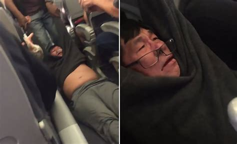 Doctor dragged from United Airlines flight compares