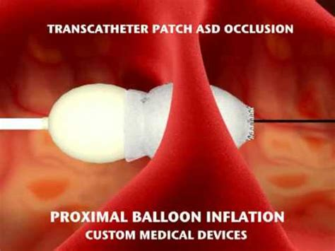 TRANSCATHETER PATCH ASD OCCLUSION - YouTube