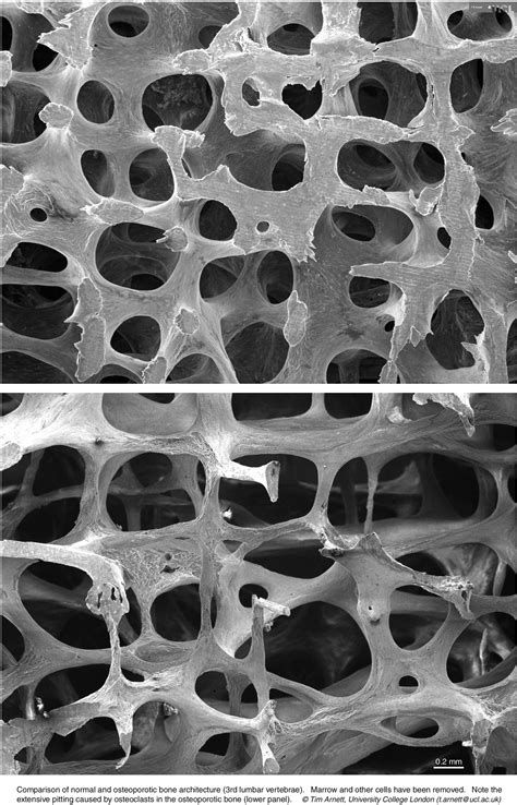 Comparison of normal and osteoporotic bone architecture
